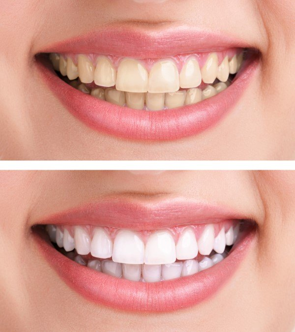 صوره كيفية تبييض الاسنان , طريقه سهله تبيض الاسنان
