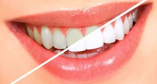صور كيفية تبييض الاسنان , طريقه سهله تبيض الاسنان