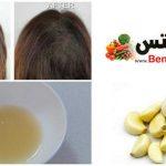 فوائد الثوم للشعر , علاج الشعر بالثوم