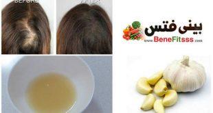 صورة فوائد الثوم للشعر , علاج الشعر بالثوم
