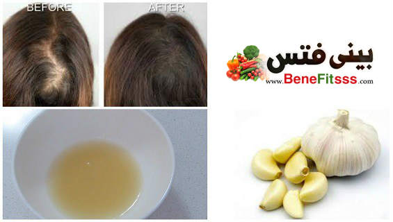 بالصور فوائد الثوم للشعر , علاج الشعر بالثوم 2038