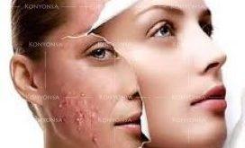 بالصور البشرة الدهنية وعلاجها , معلومات عن الشبره الدهنيه 2252 2 272x165