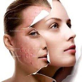 بالصور البشرة الدهنية وعلاجها , معلومات عن الشبره الدهنيه 2252
