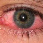 اسباب احمرار العين , اهم اسباب الاحمرار و علاجه