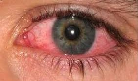 صوره اسباب احمرار العين , اهم اسباب الاحمرار و علاجه
