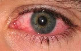 صورة اسباب احمرار العين , اهم اسباب الاحمرار و علاجه