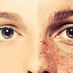 اسباب البقع البنية في الوجه , عادات خاطئه تسبب البقع البنيه
