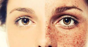 صور اسباب البقع البنية في الوجه , عادات خاطئه تسبب البقع البنيه
