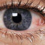 علاج ذبابة العين بالاعشاب , طريقة علاج ذبابة العين بالاعشاب