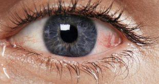 صورة علاج ذبابة العين بالاعشاب , طريقة علاج ذبابة العين بالاعشاب