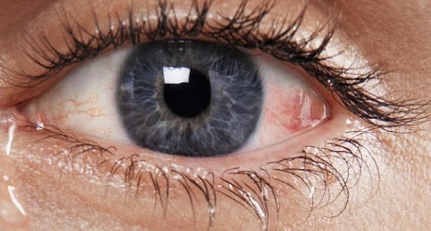صور علاج ذبابة العين بالاعشاب , طريقة علاج ذبابة العين بالاعشاب