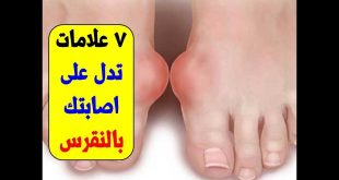 اعراض النقرس في القدم , مرض النقرص واشكاله في الرجل