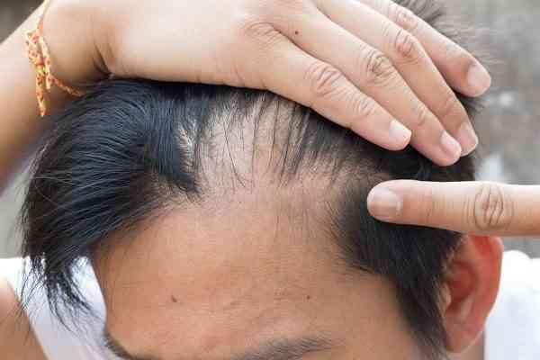 صورة تساقط الشعر من الامام , حلول للثعلبه