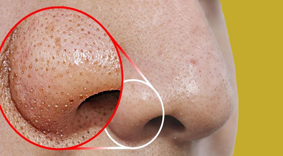 صورة افضل طريقة لازالة الرؤوس السوداء , التخلص من البقع السوداء في الانف