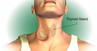 علاج الغدة الدرقية باليود المشع, الغدة الدرقية وعلاج سريع ومضمون