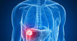 علاج اورام الكبد, معهد الاورام