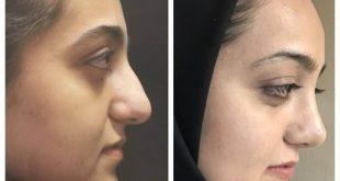 صورة عمليات التجميل في ايران, معقول بايران عمليات تجميل