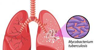 صورة اعراض الدرن الرئوي, التعالمل مع امراض الرئه